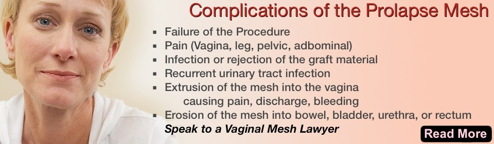 Complications of the Mesh